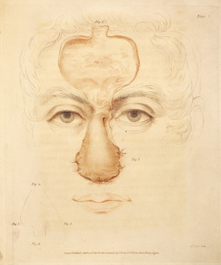 An 1816 image from a nose surgery using the Indian method