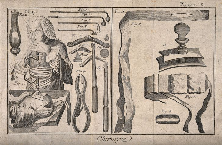 Surgical instruments and patients undergoing treatment (trepanation).