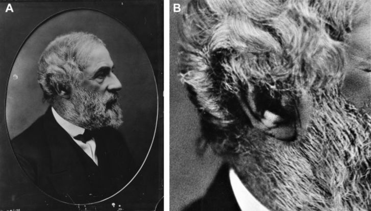 Photo of Robert E. Lee showing a crease in his right earlobe